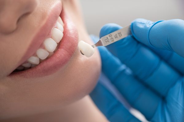 What You Need To Know Before Getting Dental Veneers
